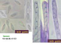 Orbilia-eucalypti-151129-TR-MCol-01JJ