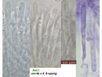 Orbilia-eucalypti-151129-TR-MCol-02JJ