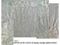 Orbilia-eucalypti-170421-ThRoed-MCol-02JJ