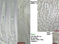 Mollisia-albogrisea-(perparvula)-170319-MCol-02JJ