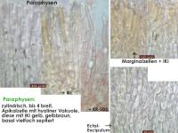 Calycina-vulgaris-161217-FPr-FP338-MCol-03JJ