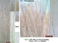 Dennisiodiscus-sparganii-170415-TR-FP375-MCol-02JJ