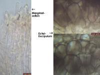 Dennisiodiscus-sparganii-170415-TR-FP375-MCol-03JJ