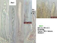 Hyphodiscus-hymeniophilus-cf-(darkgrey)-170327-ChriMoeh-MCol-02JJ
