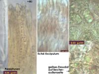 Hyphodiscus-hymeniophilus-cf-(darkgrey)-170327-ChriMoeh-MCol-03JJ