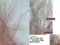 Hyphodiscus-hymeniophilus-cf-(darkgrey)-170327-ChriMoeh-MCol-04JJ