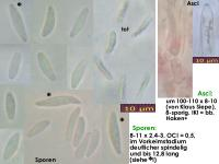 Mollisia-olivascens-170514-JAM-FP376-MCol-01JJ