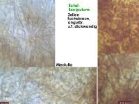 Podophacidium-spec-(IKI-)-151219-TR-MCol-07JJ
