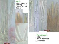 Mollisia-alcalireagens-170625-TR-FP404-MCol-02JJ