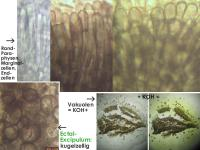 Mollisia-alcalireagens-170625-TR-FP404-MCol-03JJ