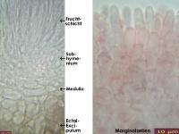 Mollisia-spec-(Calamagrostis)-170525-TR-FP381-MCol-03JJ