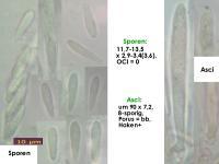 Mollisia-spec-(clavate-spored)-170519-MCol-01JJ