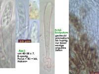 Ciliolarina-(Rehna-resinicola)-170312-AGru-FP361-MCol-02JJ
