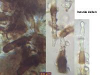 Ciliolarina-(Rehna-resinicola)-170312-AGru-FP361-MCol-05JJ