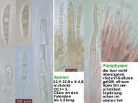 Hymenoscyphus-scutula-171022-SteBo-MCol-01JJ