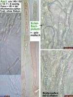 Hymenoscyphus-scutula-171022-SteBo-MCol-02JJ