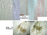 Pyrenopeziza-spec-(caulicol-hairless)-170630-FP402-MCol-03JJ