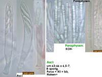 Mollisia-alni-corticis-(benesuada)-170718-FP417-MCol-02JJ