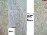 Pyrenopeziza-dilutella-170630-FP401-MCol-04JJ