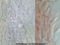 Pyrenopeziza-dilutella-170630-FP401-MCol-05JJ