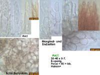Pyrenopeziza-atrata-(Digitalis)-170806-FP430-MCol-02JJ