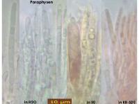 Pyrenopeziza-atrata-(Digitalis)-170806-FP430-MCol-03JJ