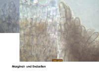 Pyrenopeziza-atrata-(Solidago)-170727-FP424-MCol-03JJ