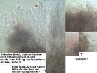 Pyrenopeziza-spec-(dark-medulla)-170605-FPr-FP384-MCol-03JJ