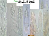 Pyrenopeziza-spec-(dark-medulla)-170720-FP415-MCol-02JJ