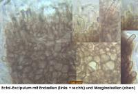 Pyrenopeziza-spec-(dark-medulla)-170720-FP415-MCol-04JJ