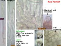 Mollisia-albogrisea-cf-(Apos-to-dark_KOH-to-weak)-170716-FP411-MCol-02JJ