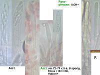 Mollisia-Poaceae-(OCI=2_KOH+)-170813-FP432-MCol-02J