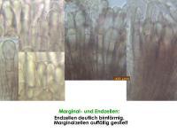 Mollisia-solidaginis-170720-FP416-MCol-03JJ