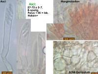 Pyrenopeziza-artemisiae-(Rumex)-170811-FP433-MCol-02JJ
