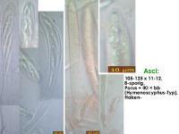 Hymenoscyphus-fallopiae-170725-MCol-02JJ
