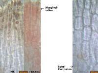 Hymenoscyphus-fallopiae-170725-MCol-04JJ