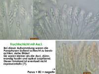 Unguiculariopsis-marsoni-180103-TR-MCol-03JJ