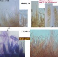 Unguiculariopsis-marsoni-180103-TR-MCol-08JJ