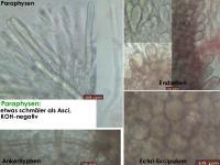 Mollisia-caricina-cf-(KOH-)-170525-TR-FP381-MCol-03JJ