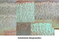 Pyrenopeziza-petiolaris-(Reynoutria)-180116-KMueller-MCol-07