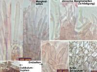 Mollisia-olivaceocinerea-(nodosa)-170407-FP363-MCol-03JJ