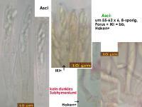 Mollisia-cinerea-(karamellbraunrandig)-180218-WS-MCol-02JJ