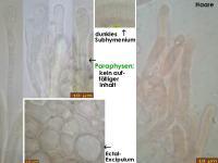 Ciboria-amentacea-(Corylus)-180312-iw003-MCol-03