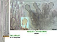 Mollisia-lividofusca-180402-iw007-MCol-02JJ