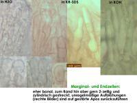Mollisia-lothariana-(Typha)-180512-TR-iw020-MCol-04