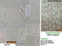 Pyrenopeziza-spec-(Polygonum_OCI=1)-180603-TR-iw022-MCol-01JJ