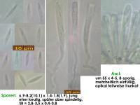 Orbilia-luteorubella-180629-CE-iw026-MCol-01JJ