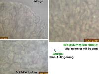 Orbilia-luteorubella-180629-CE-iw026-MCol-05JJ