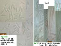 Mollisia-olivascens-180527-MM-IW021-TU104979-MCol-01JJ