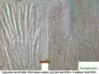 Mollisia-mutiguttulata-(Carex)-180609-TR-iw023-MCol-02JJ